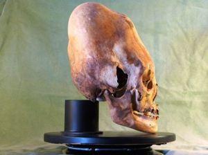 Marzulli_paracas-skull-dna